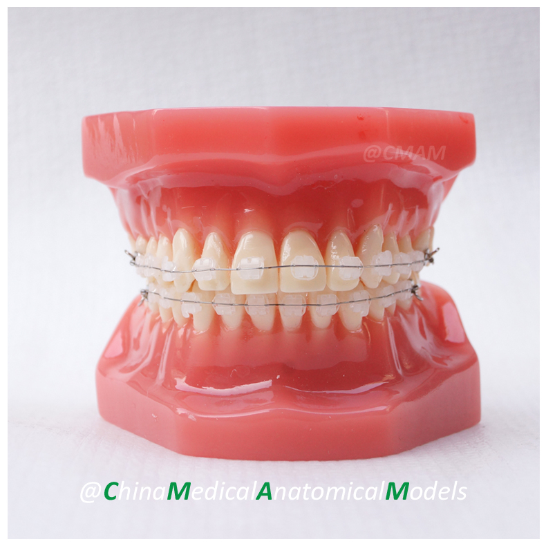 DH206-3 Dentist Patient Communication Dental Ortho Ceramic Bracket Model, China Medical Anatomical Model pain management among colorectal cancer patient on chemotherapy