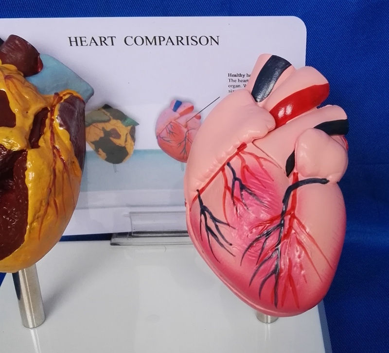 11 Lifesize Human Smoking Heart Vs Normal Heart Comparison Model