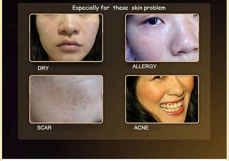 DAINMEI 24K Gold Snail Skin Care Set & Essence Cream Eye Cream BB Creams Toner Facial Cleanser& 5pcs Face care Set 3