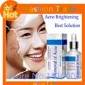 30ml Blackhead Mite Treatment anti melasma & Freckle cream Acne Scars Remove Whitening Moisturizing herbal medicine oil control