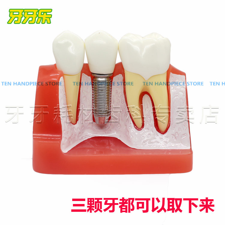2018 good quality dental teeth model Fourfold planting model Planting hospital communication Dental teaching model