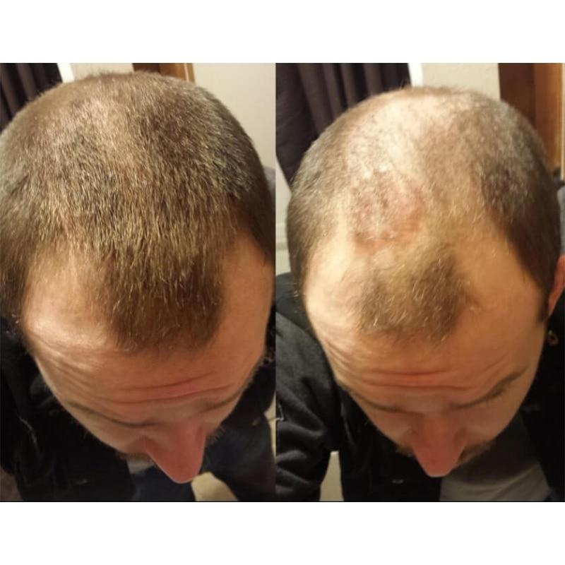 Sevich Regrowth масло для волос кератин утолщение наращивание волос Мгновенно 25 г волос волокно порошок спрей аппликатор черный/dk коричневый