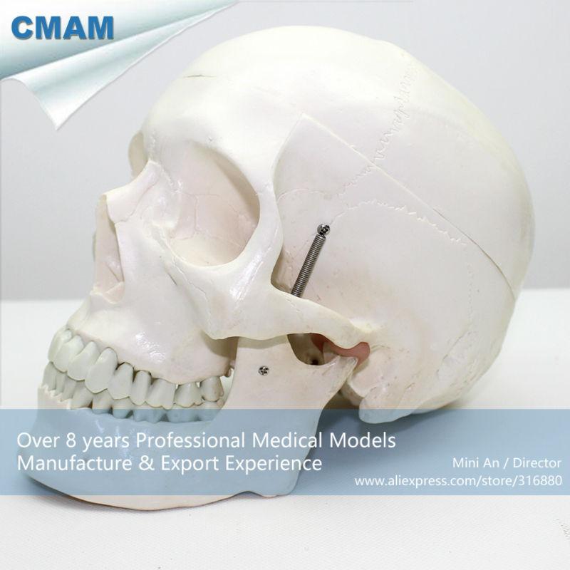 CMAM-SKULL03 Medical Skull Anatomy Model for Patient Communication soarday skull model with clolour skull fractures fixed model hospital clinic doctor patient communication simulation model