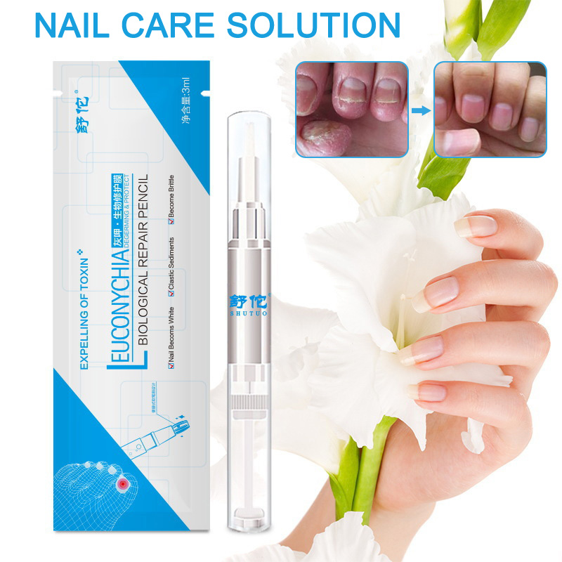 3ml Nail Fungus Treatment Liquid Anti Fungal Finger Toe Nail care solution Professional Herb Nails Treatment Liquid