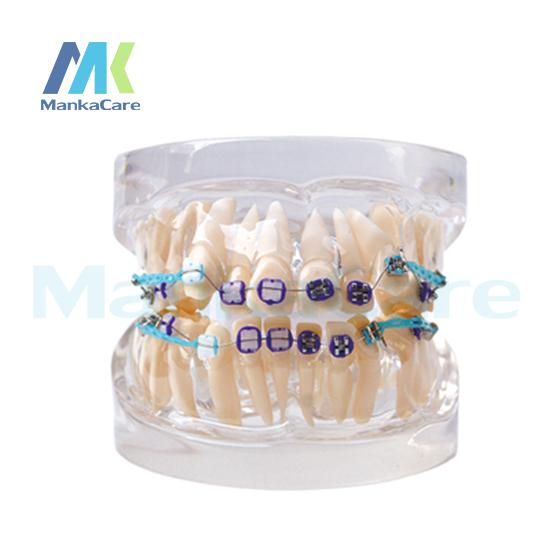 Manka Cuidar-24 pcs Dente, metade da pena do metal & meio bracket cerâmica Modelo Oral Dente Dentes Modelo