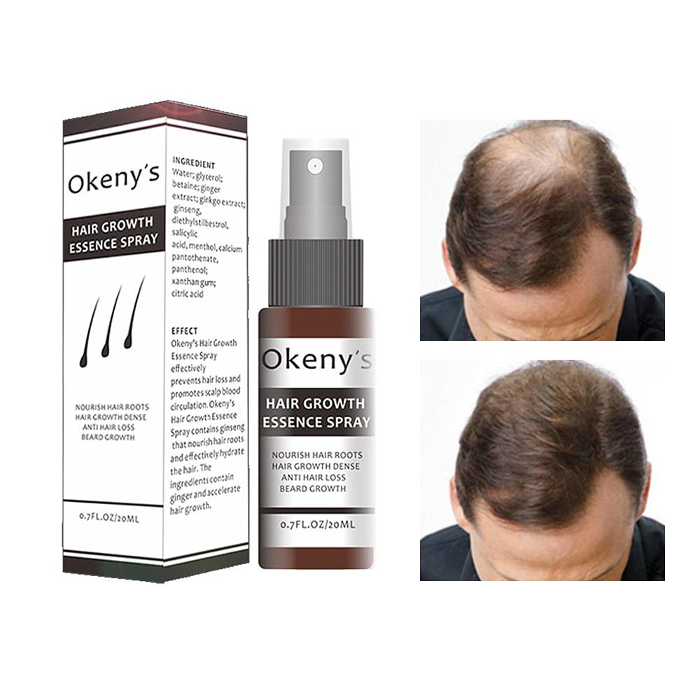 1 Pc Ginseng Hair Care Essence Treatment For Men And Women Hair Loss Fast Powerful Hair Growth Serum Repair Hair Root 20ml TSLM2