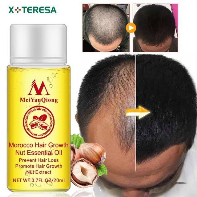 Cuidado del cabello Marruecos el crecimiento del cabello aceites esenciales esencia auténtico 100% pérdida de cabello líquido salud belleza pelo denso suero de crecimiento