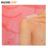 12CM*8CM Patches Silicone Gel Scar Away Therapy Wound Scar Paste Removel Cesarean Section Hypertrophic Keloid Scar Removal
