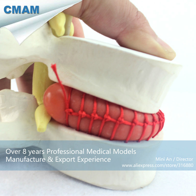 CMAM-VERTEBRA08 Demo model of lumbar disc herniation ,1.5 times Enlarge, Pathological model for Patient Communication clinical significance of electro diagnosis in disc herniation