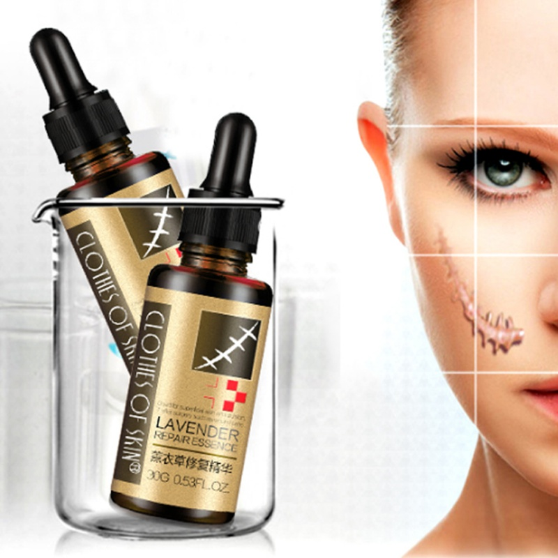 30g Lavender Essence Scar Repair Skin Essential Oil Natural Pure Remove Ance Burn Strentch Marks Scar Removal