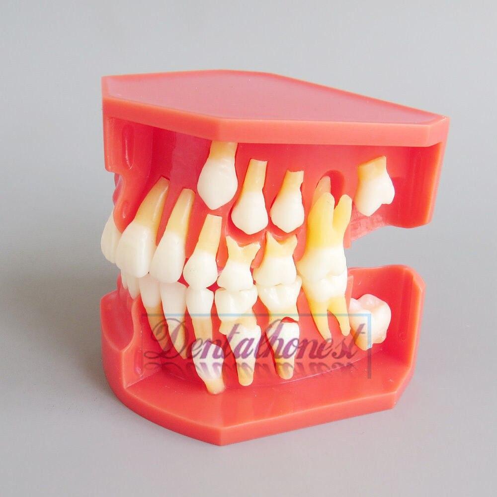 Nouveaux enfants dents permanentes modèle alternatif dents à feuilles caduques démonstration amovible pour les enfants enseignant l'étude
