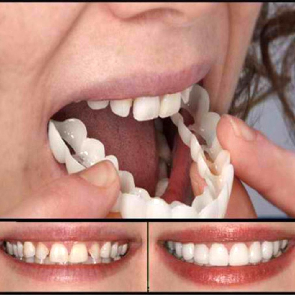 Whitening False Veneers Teeth Cosmetic Dentistry Snap On Smile Instant Perfect Smile Comfort Fit Flex Teeth Upper Tooth Cover