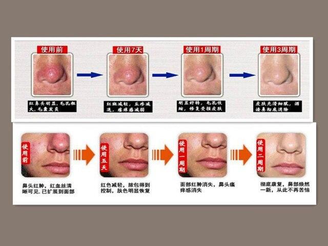 face cream for rosacea