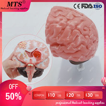 цена на Brain structure anatomy model Brain stroke pathology model Neurology medical teaching aid skull traumatic pistol