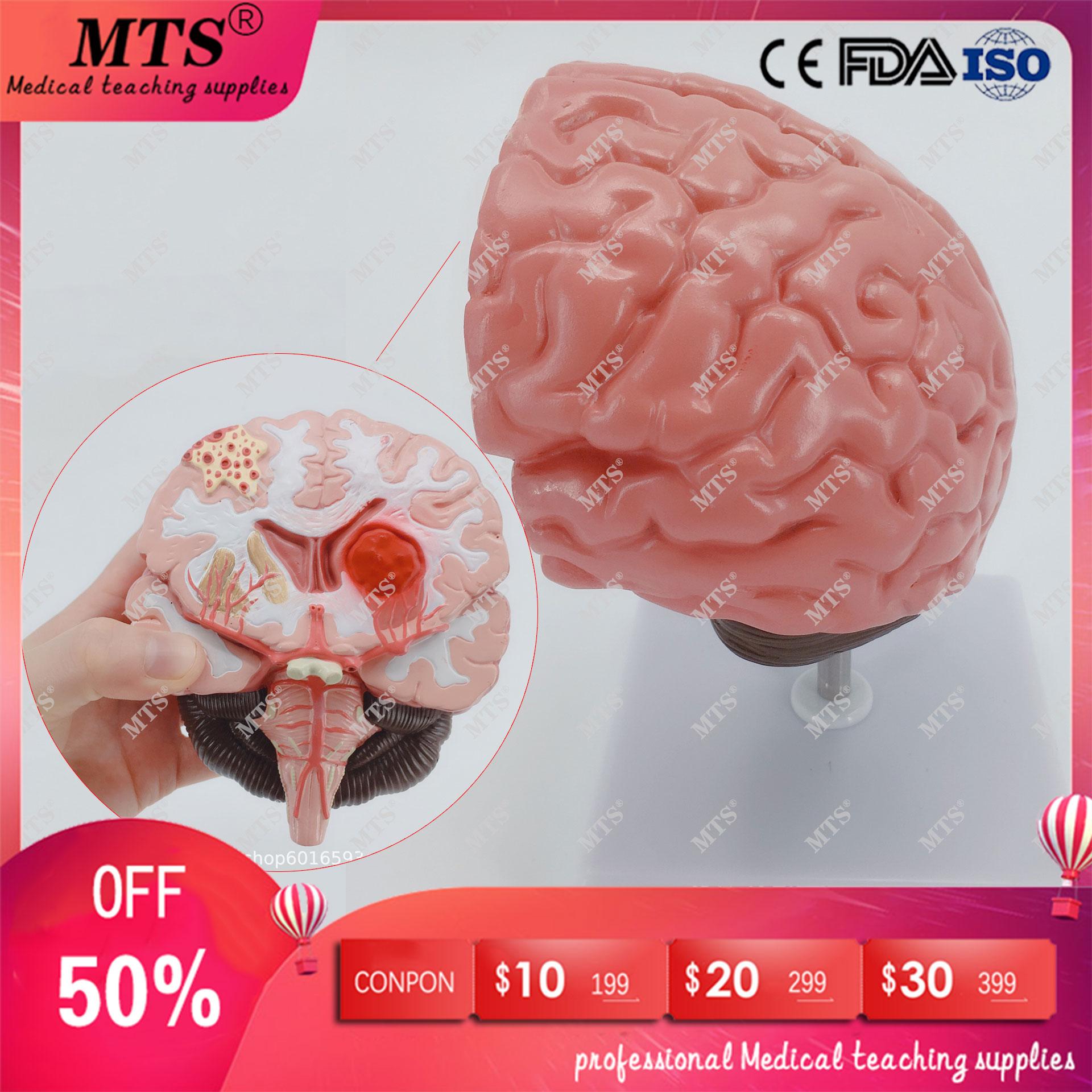 Modèle d'anatomie de la structure du cerveau modèle de pathologie des accidents cérébraux neurologie aide à l'enseignement médical pistolet traumatique crâne