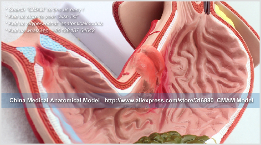 US $59 63 |CMAM/12537 Stomach Gastric Diseases, Human Digestive System  Medical Teaching Anatomical Model-in Medical Science from Office & School