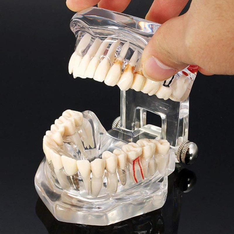 1pcs Doença Dental Implant Modelo Teeth Com Restauração Ponte Dente Dentista Para A Ciência Médica Doença Dental Ensino Estudo