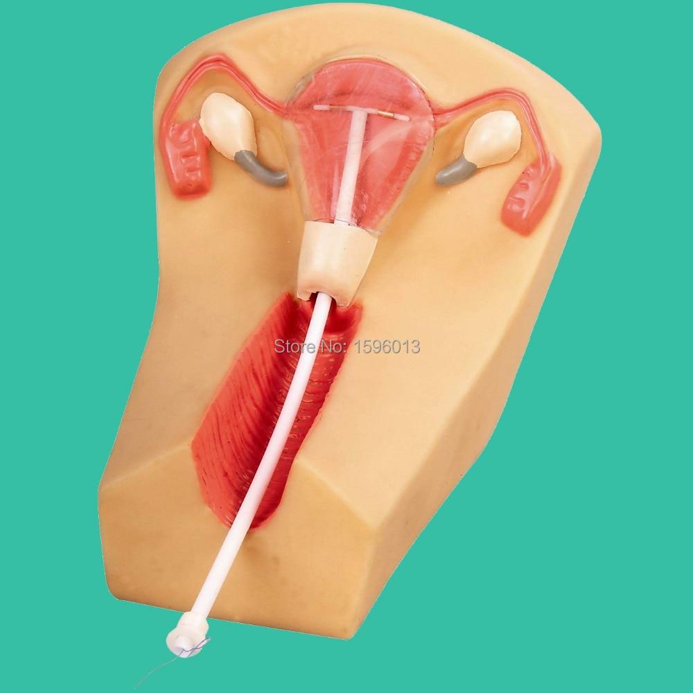 Female Intrauterine contraceptive device model, IUD Training Simulator iso advanced iud training simulator female contraceptive device guidance model