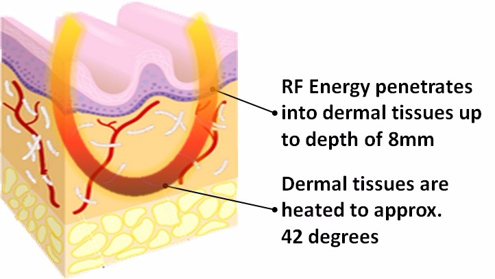 rf-skin-tightening-during