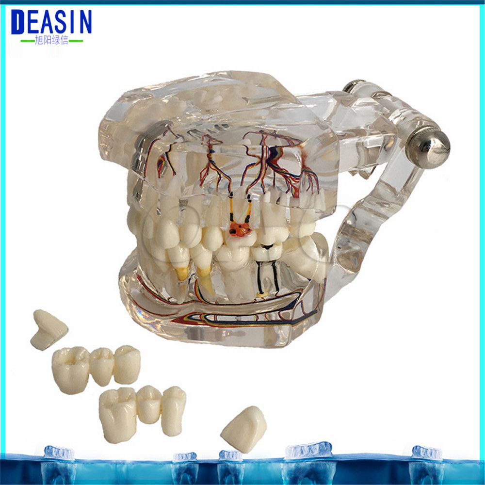 Dental Implant Teeth Dental Pathological Teeth Implant Model Teaching Teeth Model & Restoration Bridge Tooth soarday pathological restoration model teaching demonstration dentist patient communication model dental materials