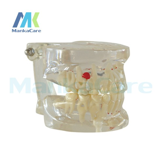 Cheap tooth model