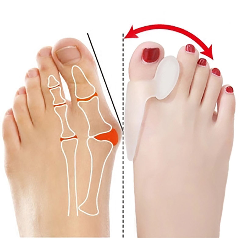 2pc Silicone Hallux Valgus Splitter Bunion Correctors Toes Separators Thumb Corrector Foot Finger Splitters Spacer Pedicure Tool