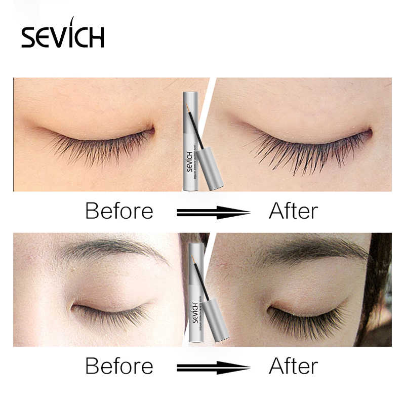 2ff326a7503 ... Sevich Eyelash Growth Enhancer Natural Medicine Treatments Lash Eye  Lashes Serum Mascara Eyelash Serum Lengthening Eyebrow