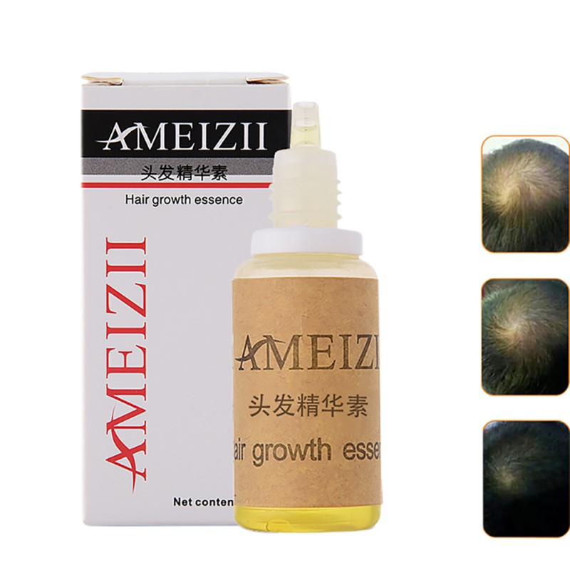 Herbal Ginger Hair Care Essence Treatment For Men And Women Hair Loss Fast Power