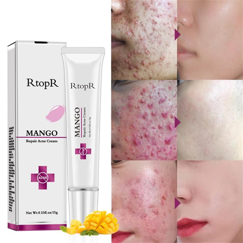 Repair Acne Cream Mango Treatment Scar repair cream anti-acne spot whitening Moisturizing blackhead shrink pores face care TSLM1(China)