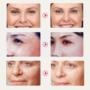 Image 5 - SOMILD 24K Gold Face Cream Snail Essence Anti Aging Skin Care Wrinkle Blemish Remove Korean Cosmetics Eye Cream Facial Whitening