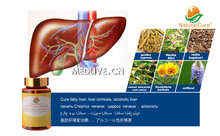 NaturalCure Cure Fatty Liver Caps-ules, Prevent Cirrhosis and  Liver Cancer, Traditional Chinese Medicines with New Tech
