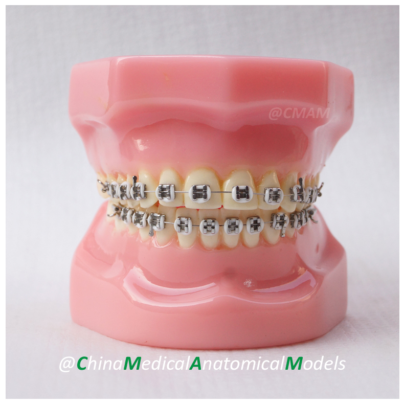 13027 DH203-1 Dentist Demo Oral Dental Ortho Metal Model, China Medical Anatomical Model dh202 2 dentist education oral dental ortho metal and ceramic model china medical anatomical model