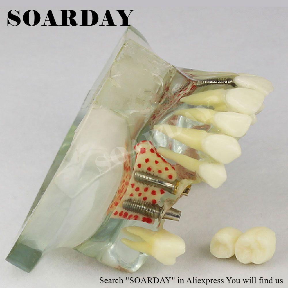 SOARDAY tandimplantatmodell med 6 st. Implantatspikar för - Skola och pedagogiska förnödenheter - Foto 2