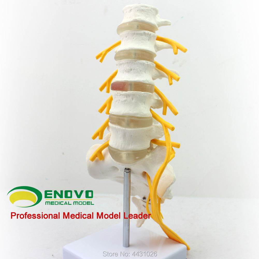 ENOVO Five lumbar vertebrae model of the cauda equina nerve model 1pcs sl6 m5 sl6 01 sl6 02 sl6 03 sl6 04 pneumatic throttle valve quick push in 6mm tube air fitting connector flow controller