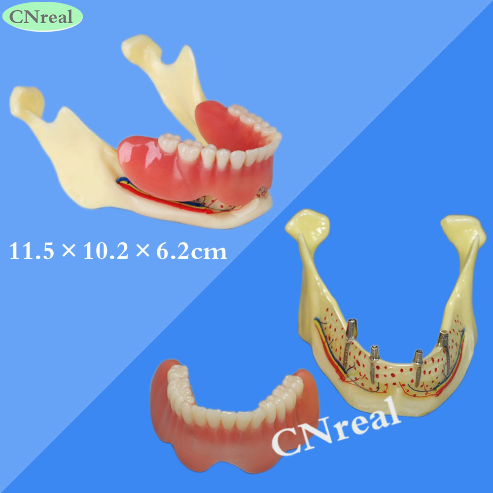 1 piece Mandible Implant Teeth Model for Dental Teaching Dentist Lab Demonstration orthodontic model 6 1 teeth nerve anatomical dissection demonstration dentist endodontics teaching with clear base