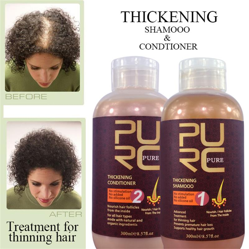 PURC Ginger Juice Hair Shampoo And Conditioner Best Effect Anti Hair Loss Hair Growth Professional Hair Scalp Treatment Set