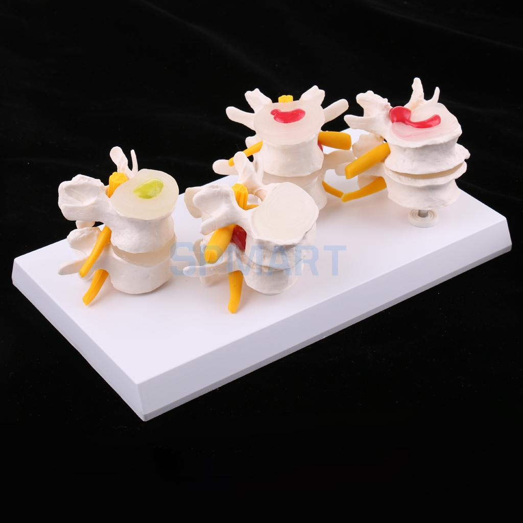 4-Part Human Lumbar Vertebra Diseased Contrast Medical Model Lesion Presentation Statue School Learning Teaching Tool Lab Supply ...