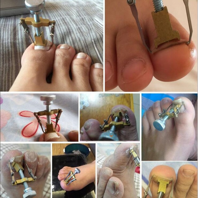 Ingrown Toenails Toe Nail Care Tool Professional File Corrector Device Pedicure Foot Orthotic Acronyx Onyxis bunion Protector
