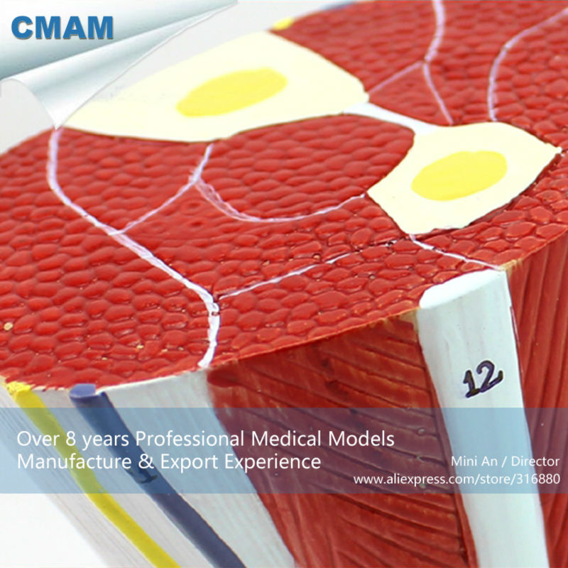 Muscle CMAM/12036 Plastic Body