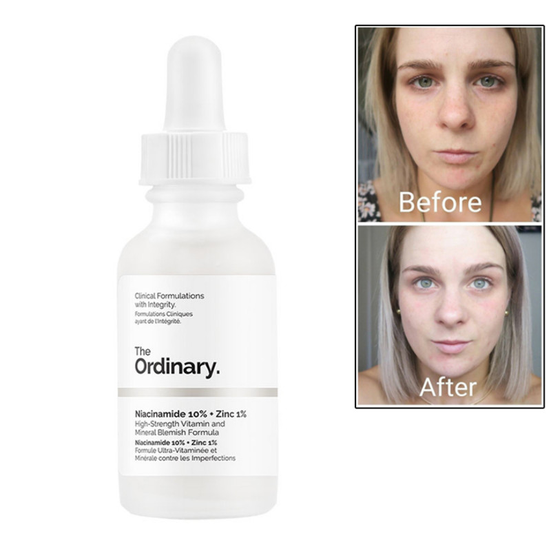 The Ordinary Niacinamide 10% + Zinc 1% Balance Reduce Skin Blemishes Whitening Moisturizer 30ML Face Serum Oil