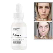Обычный никотинамид 10%+ Цинк 1% баланс уменьшить дефекты кожи отбеливающий увлажняющий крем 30 мл уход за кожей лица Сыворотки масло