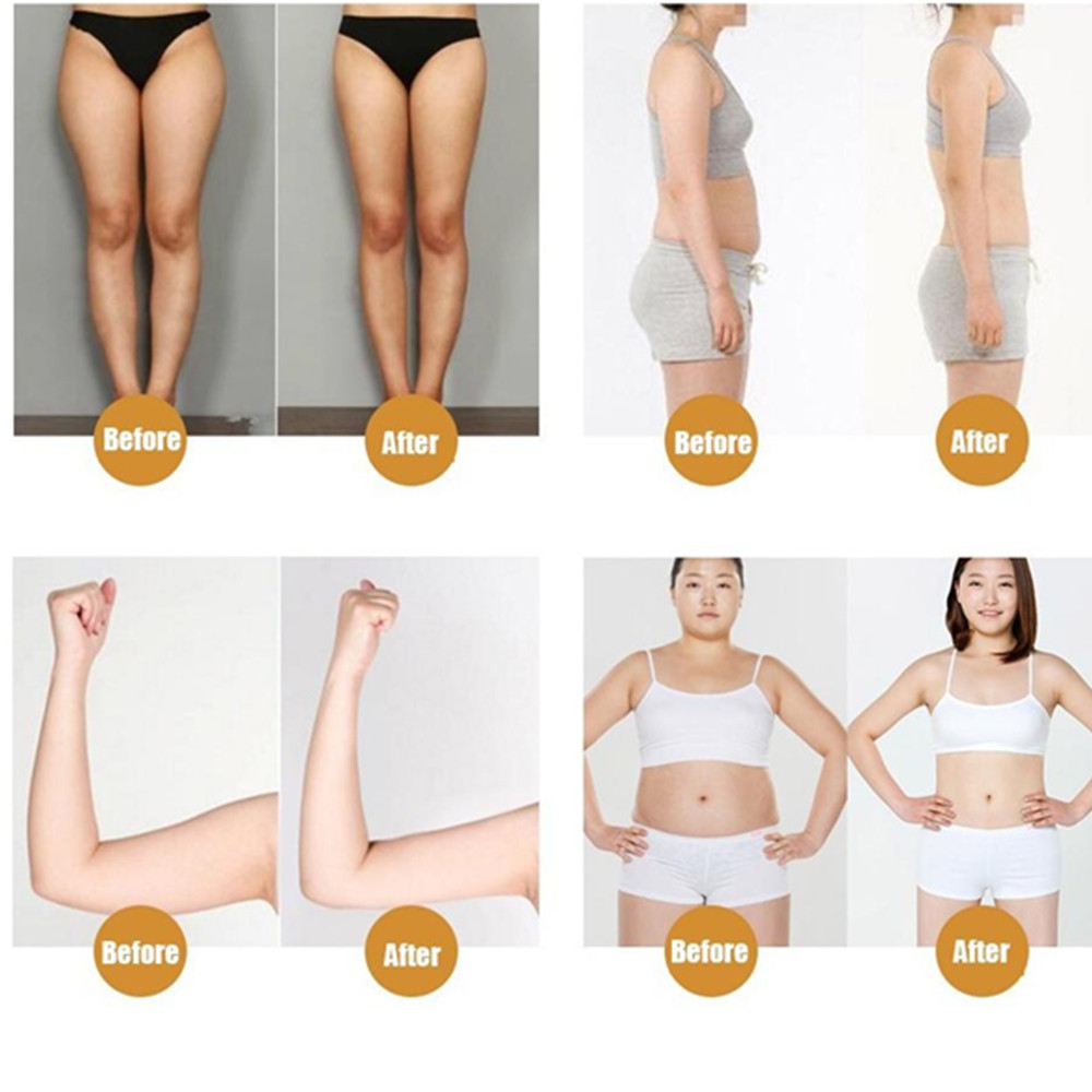 KONGDY Natural Slimming Stick 100 Pieces=10 Bags Slimming Navel Sticker Slim Patch Weight Loss Burning Anti Cellulite Fat Patch 4