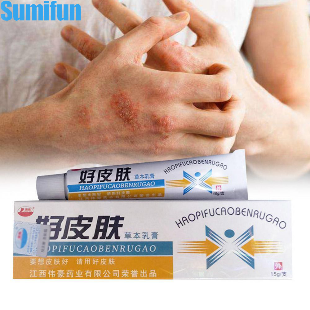 Body Herbal Material Psoriasis Creams And Eczema Psoriasis Ointment Skin Care Health Products Patches
