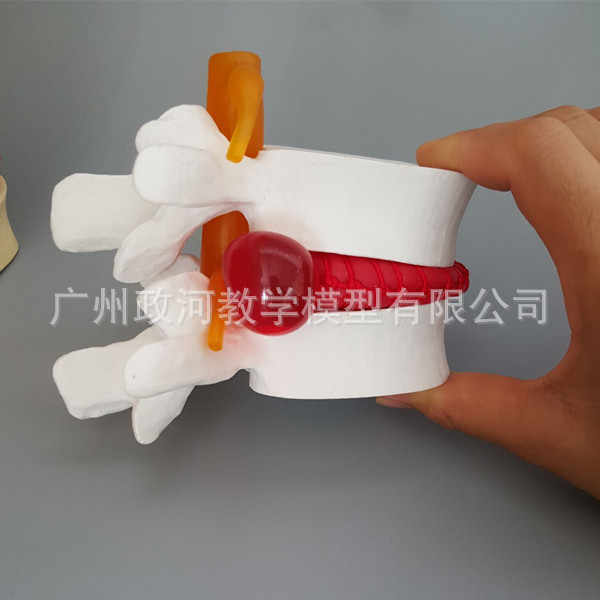 Жизнь Размер человеческая поясница грыжа диска демонстрационная модель поясничная модель позвоночника модель биологии медицинская игрушка-скелет