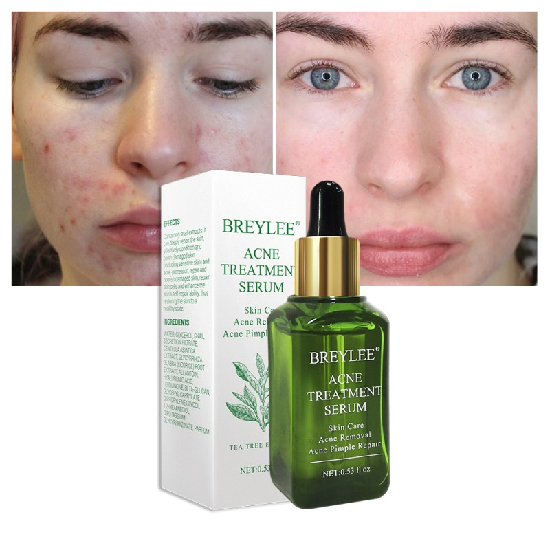 Acne Treatment Serum Facial Essence Anti Acne Scar Removal Cream