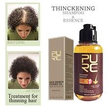 PURC Narutal Ginger Hair Growth Shampoo & Essence Oil Baldness Fast Help Strengthen Prevent Hair Loss Hair Treatment Care Set