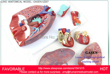 PATHOLOGY LUNG MODEL, DEPARTMENT OF INTERNAL MEDICINE MODEL,PULMONARY ANATOMY,PULMONARY ANATOMIC MODEL-GASEN-XZ007