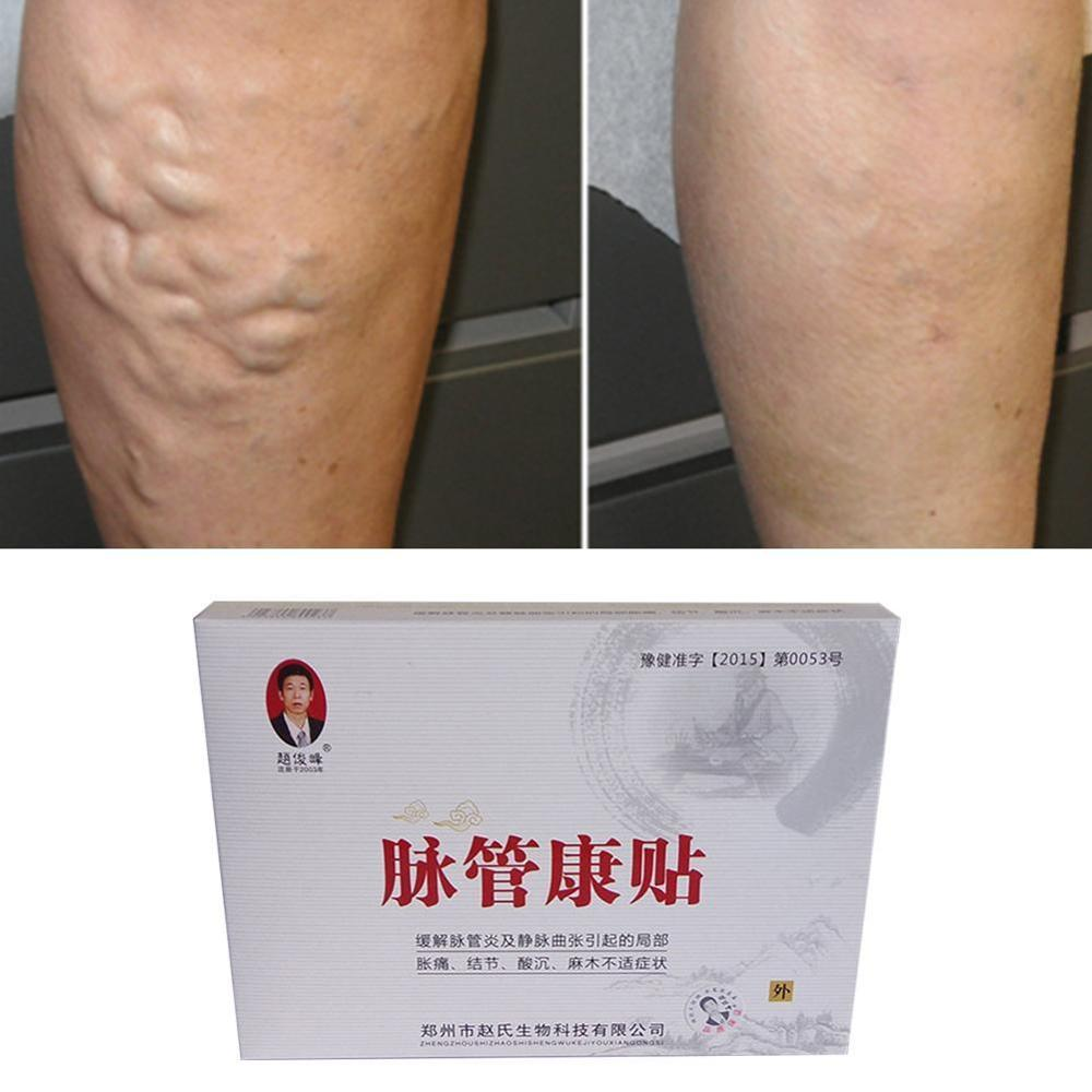 3 Pcs Spider Veins Varicose Treatment Plaster Varicose Veins Cure Patch Vasculitis Natural Solution Herbal Patches