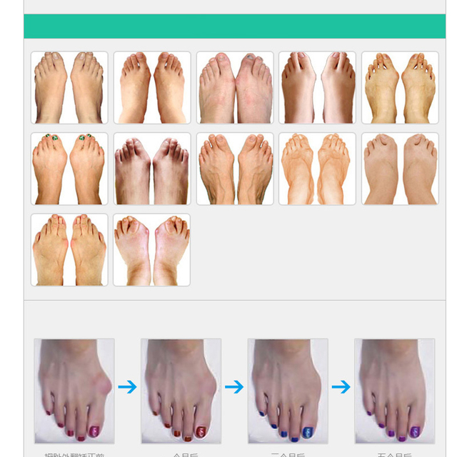 1Pair Foot Care Tool Thumb Night Use Pedicure Of Daily Silicone Use Gel Toe Bunion Toe Separators Finger Support Hallux Valgus Body Care