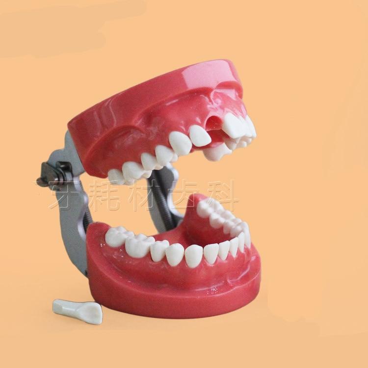 Nouveauté modèle dentaire amovible modèle dentaire modèle de pratique d'arrangement dentaire avec modèle de simulation d'enseignement de vis
